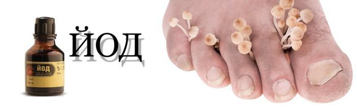 Лак от грибка на ногтях недорогой