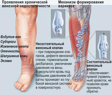 Формирование варикозной болезни