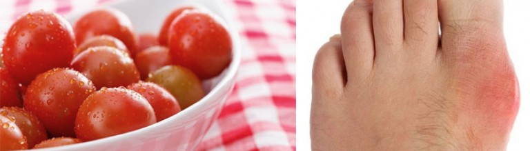 От томатов подагра