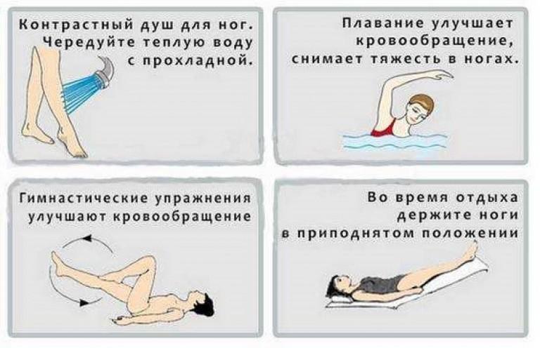 Нагрузка при варикозе ног