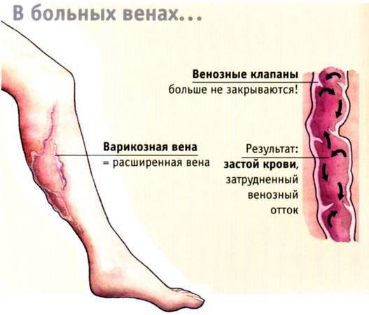 Что происходит в больных венах