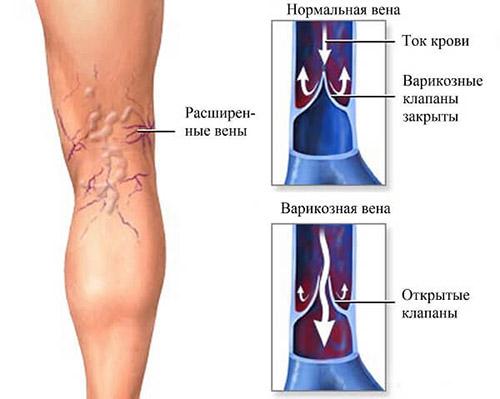 Как лечить тромбофлебит глубоких вен нижних конечностей