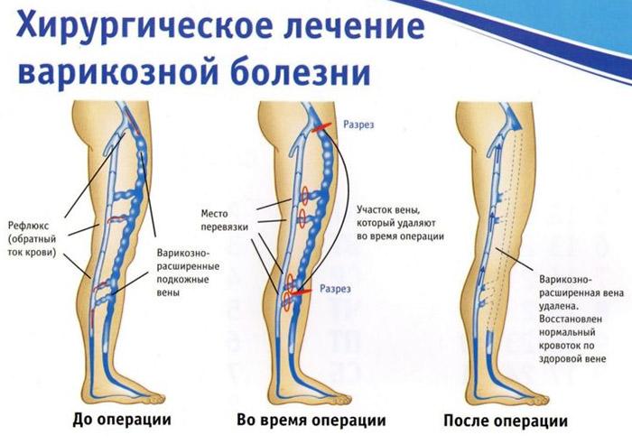 Какие есть мази от варикоза вен на ногах