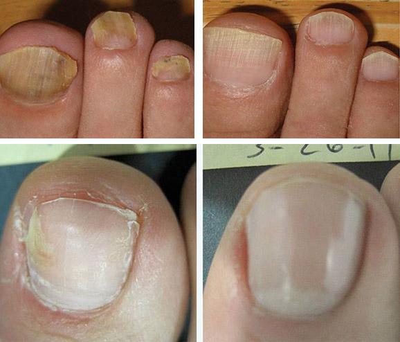 Можно ли красить ногти при лечении грибка на ногтях ног