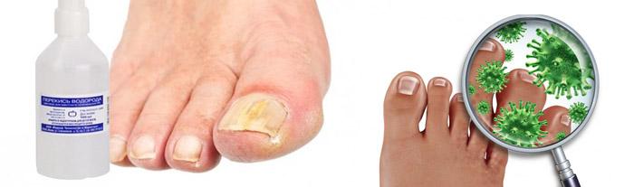 К какому врачу обратиться с грибком ногтя на ногах