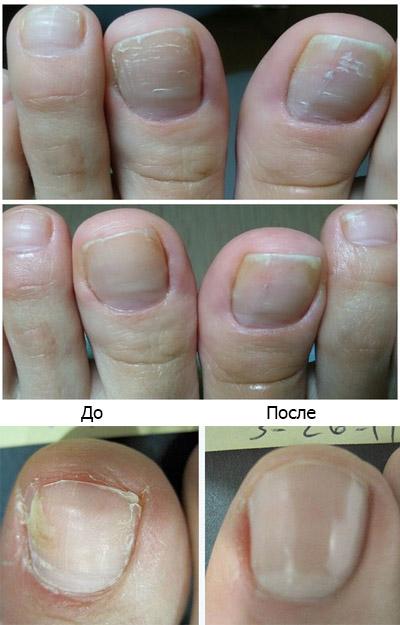 Медный грибок ногтей на ногах