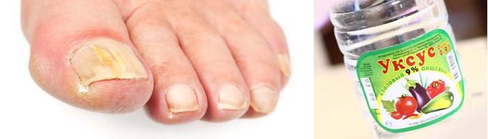 Грибок ногтей на ногах лечение в домашних уксусом