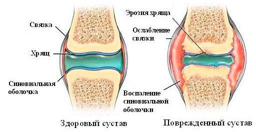 Особенности строения коленного сустава