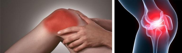 воспаление в коленном суставе к какому врачу