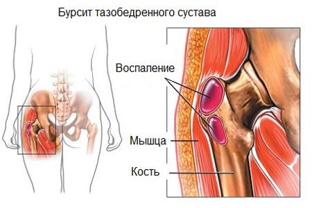 Воспаление бурсит