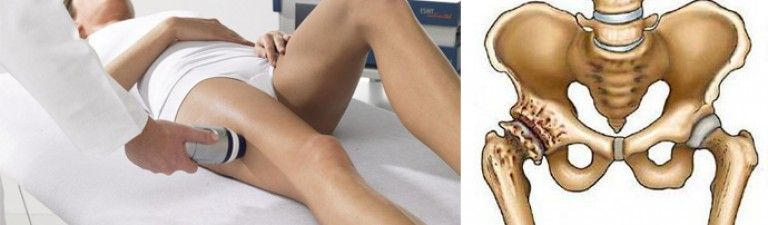 коксартроз 3 стадии тазобедренного сустава какая группа инвалидности