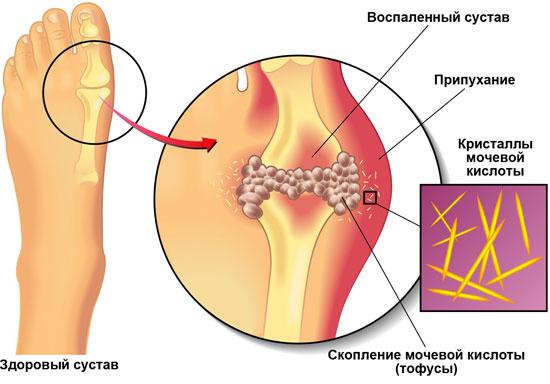 Воспаленные суставы