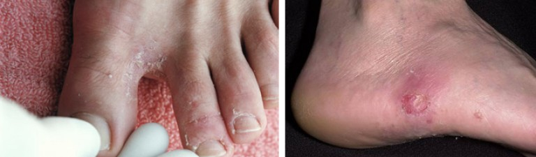 Чувство жжения кожи на ноге