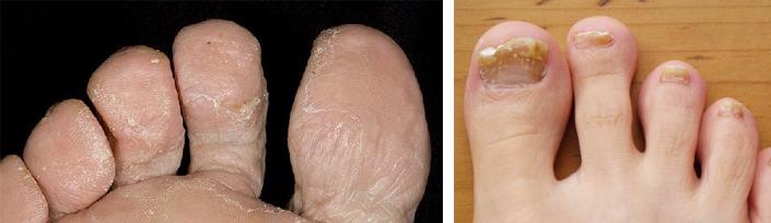 Средства от грибка стопы и пальцев ног