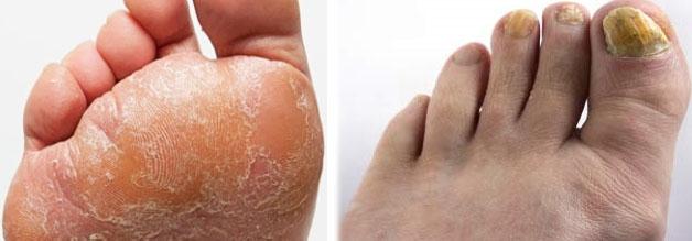 на ногах грибок фото