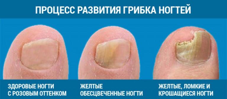 Грибок на ногах и ногтях