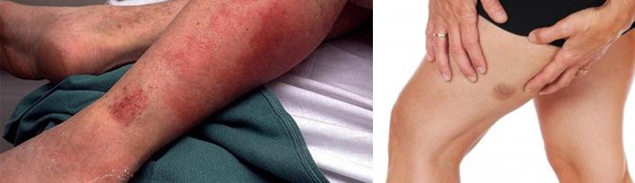 Рожистое воспаление ноги лечение лекарства и препараты