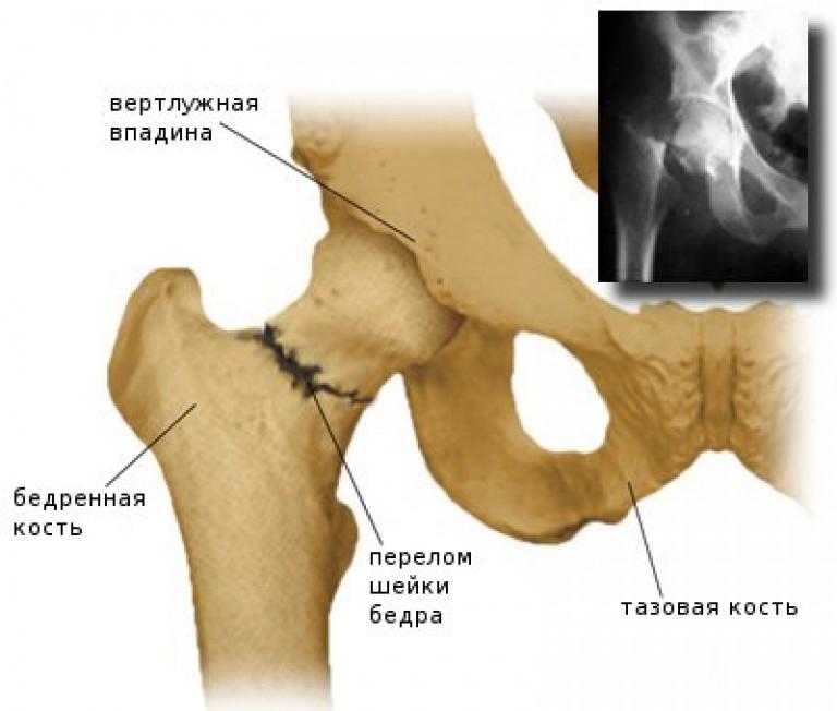 хрупкие суставы и кости от чего
