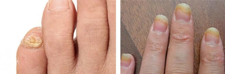 Восстановление ногтей на ногах после грибка
