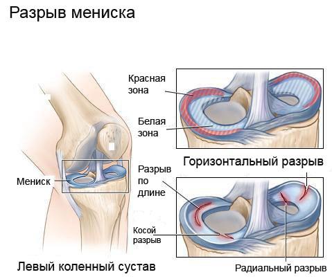 Болит колено сбоку с внутренней стороны, лечение, к какому врачу идти