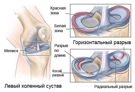 Повреждение и разрыв мениска коленного сустава диагностика и лечение