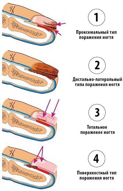Стадии заболевания ногтей