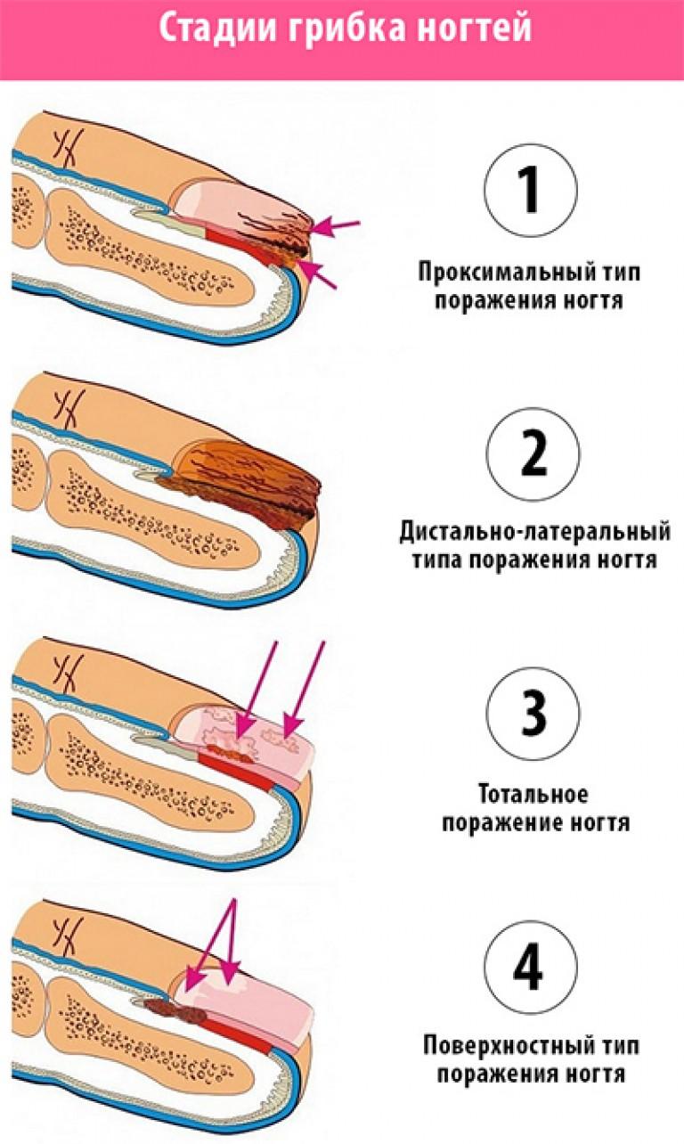 Грибок стопы и ног фото