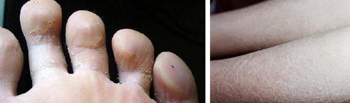 Сухая кожа на ногах у ребенка: причины, способы лечения