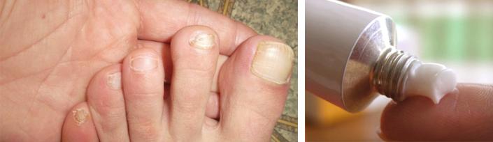 Терапия при грибковом поражении ногтей
