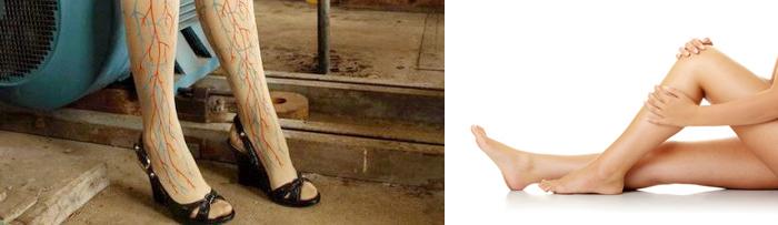 Лекарства от варикозного расширения вен на ногах