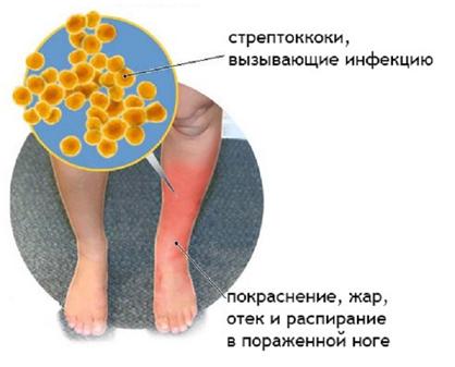 Что вызывает воспаление