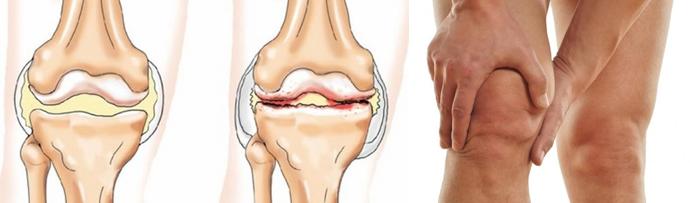 Что делать при повреждении колена