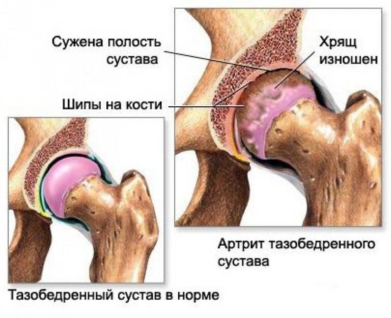 инфекционный артрит тазобедренного сустава - его симптомы