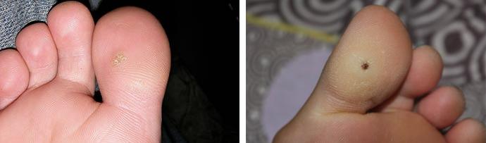 фото на пальце ноги шипица фото