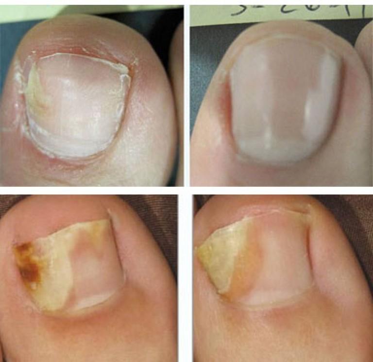 Пробиотики при лечении грибка ногтя