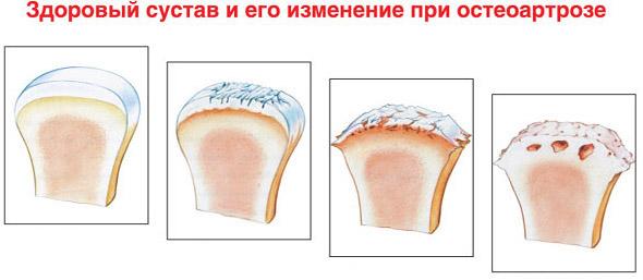 Воспаление при остеоартрозе