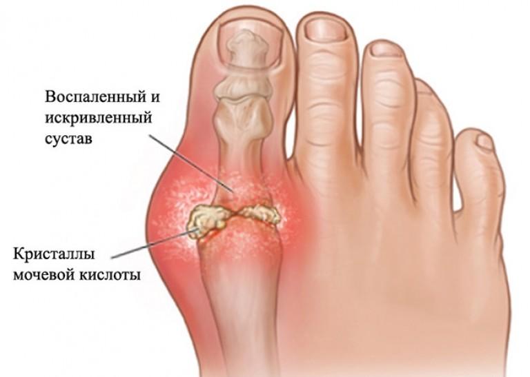 как лечить суставы на пальцах
