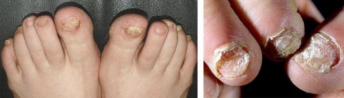 Грибковая инфекция стопы