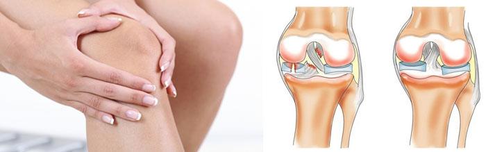 Артрит колена симптомы и лечение