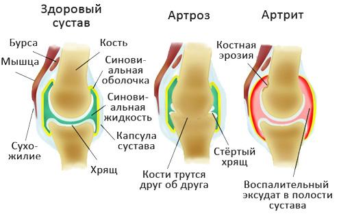 Изменения при артрозе