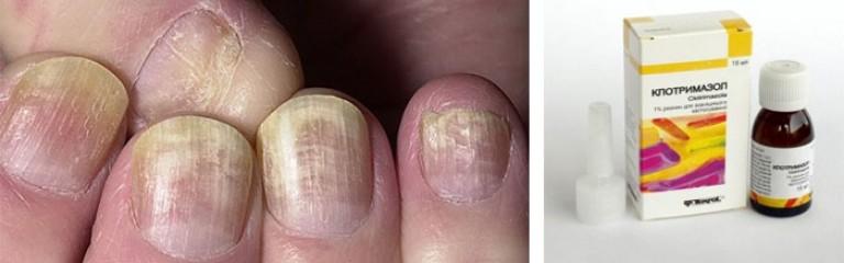 Лечение грибка ногтей на ногах экзодерил