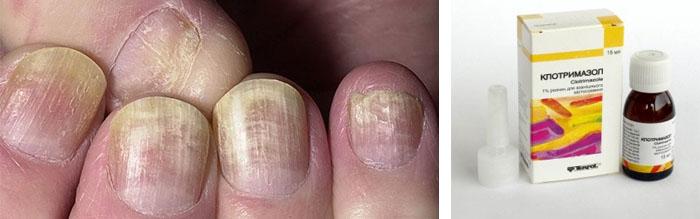 Грибок ногтей лечение препараты форум