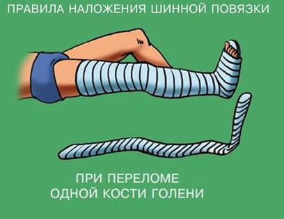 Как накладывается повязка