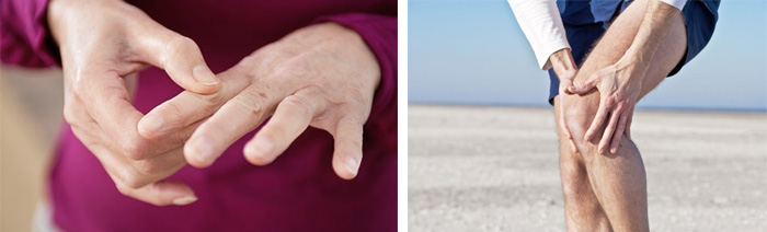 Профилактика артрита рук, ног и тазобедренного сустава, последствия