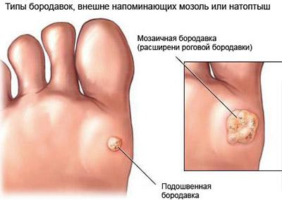 Лечение папилломавирус в анусе