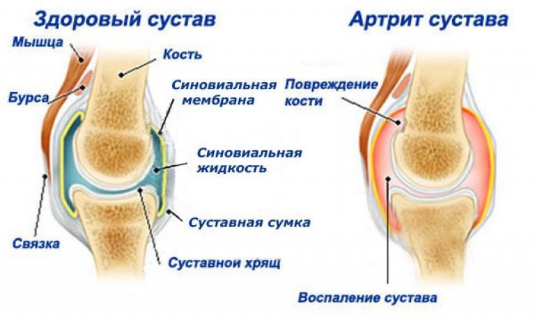 Плазмоферез при гепатитах