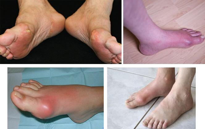 Как проявляется заболевание