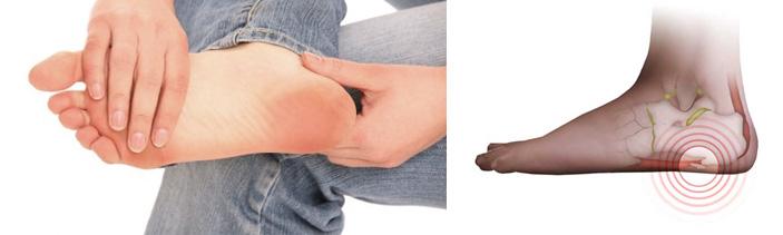 Как убрать шпору на ноге