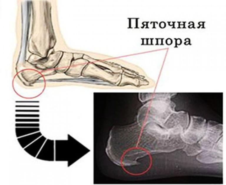 шпоры в ноге