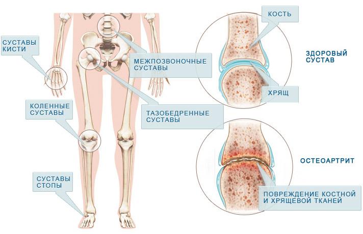 Полимиалгия Ревматическая